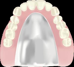 コバルトクロム床入れ歯