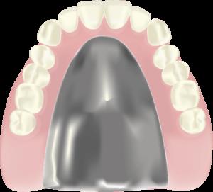 チタン床入れ歯