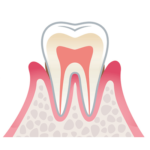 歯周病の進行(軽度)