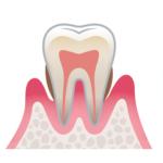 歯周病の進行(中等度)