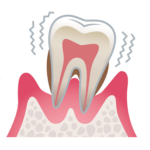 歯周病の進行(重度)